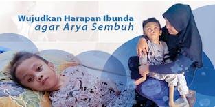9 Tahun Si kecil Arya Hidup dengan Hidrosefalus