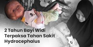 2 Tahun Tanpa Sentuhan Medis Kepala Bayi Widi Semakin Membesar