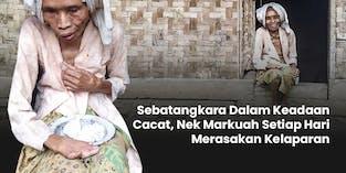 Setiap Hari Menahan Lapar Lansia Cacat Ini Mencoba Bertahan Hidup