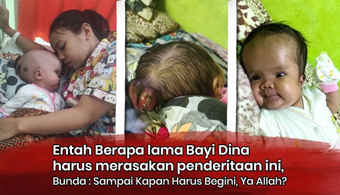 Meringis Kesakitan Bayi Dina Butuh Operasi