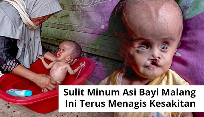 Tak Bisa Minum Asi Bayi Raya Idap Hidrosefalus dan Bibir Sumbing